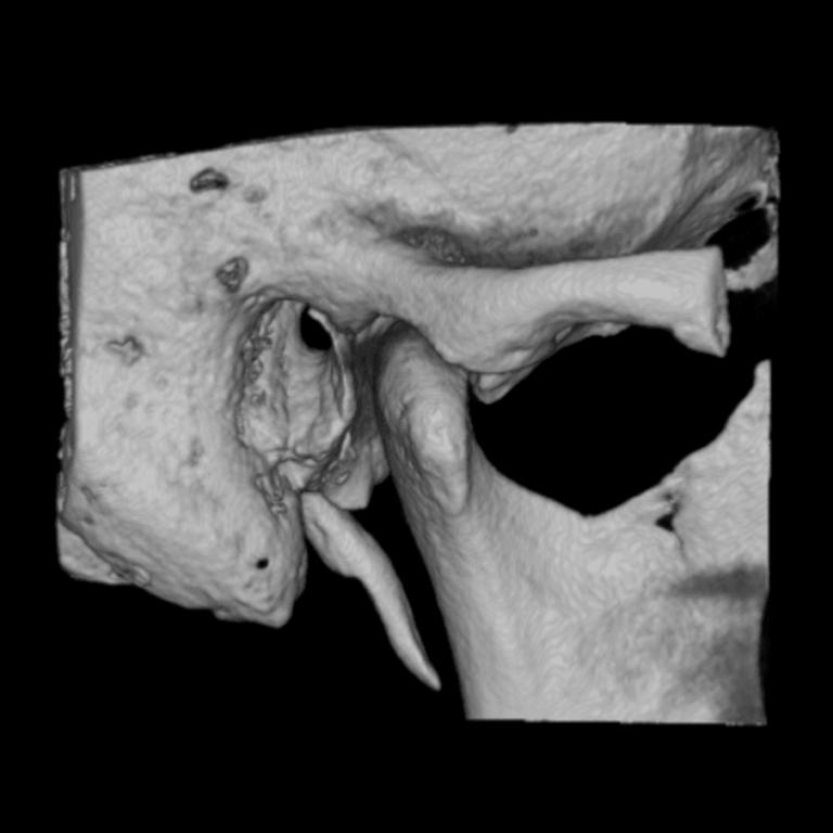 Kæbeled anatomi